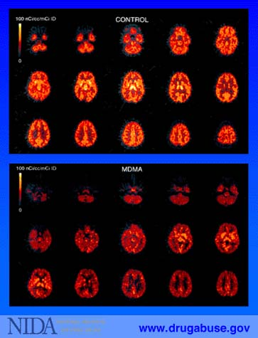 Brain Imaging, MDMA